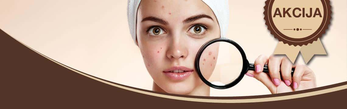 Piling za aknoznu i problematičnu kožu