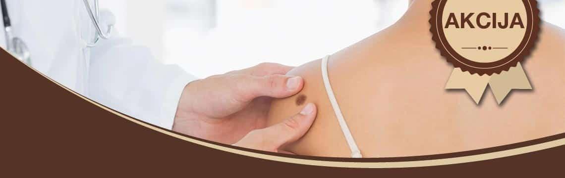 Uklanjanje mladeža radiotalasima + GRATIS dermatoskopija! AKCIJA
